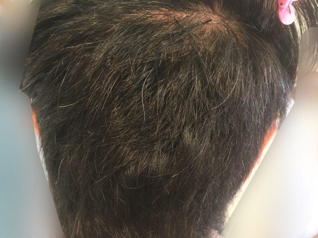 ルーチェクリニック植毛3ヶ月後の採取部2