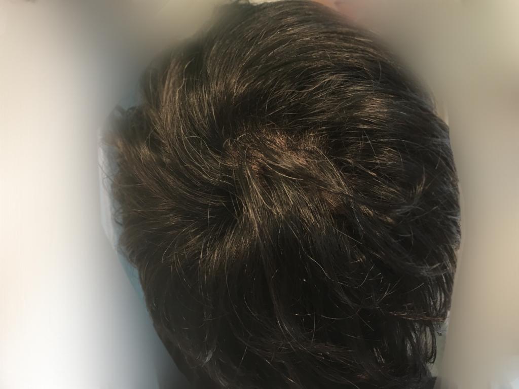 ルーチェクリニック植毛3ヶ月後のつむじ