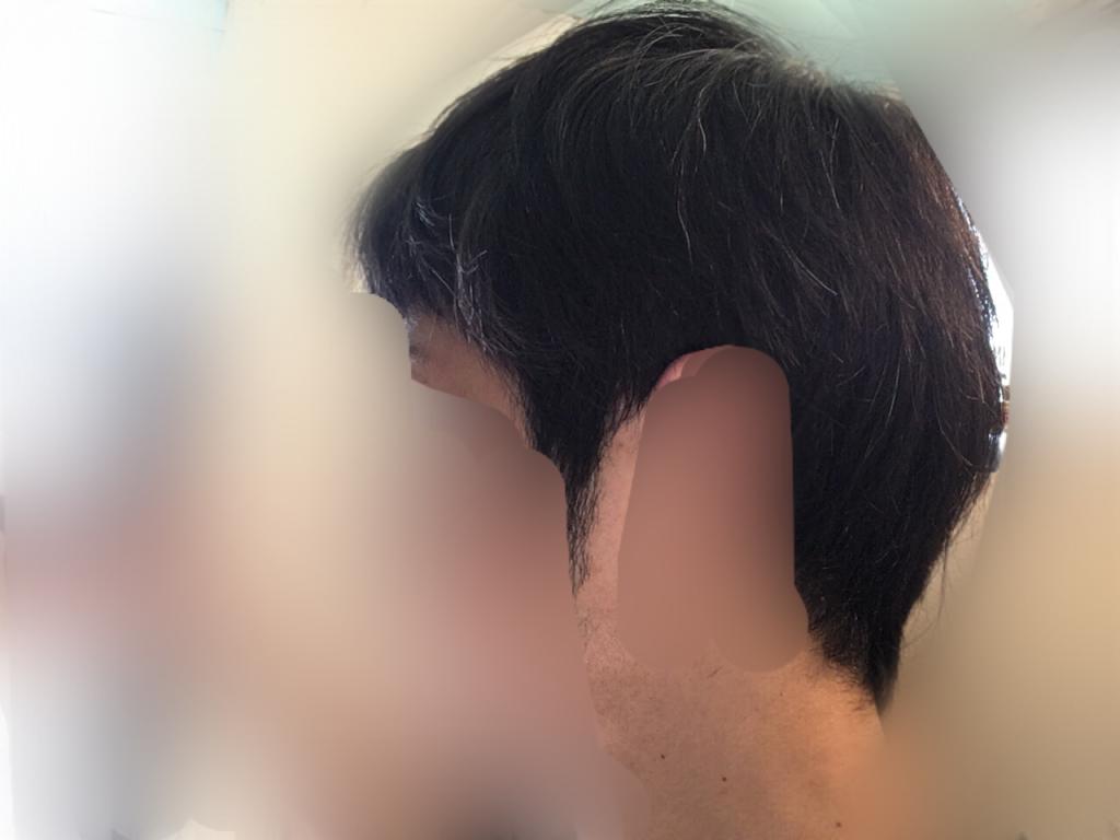ルーチェクリニック植毛3ヶ月後の刈り上げ部おろした左向き