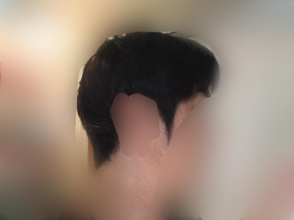 ルーチェクリニック植毛3ヶ月後の刈り上げ部おろした右向き