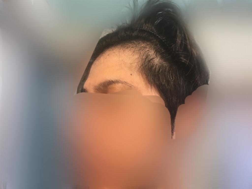 ルーチェクリニック植毛3ヶ月後の顔全体左向き