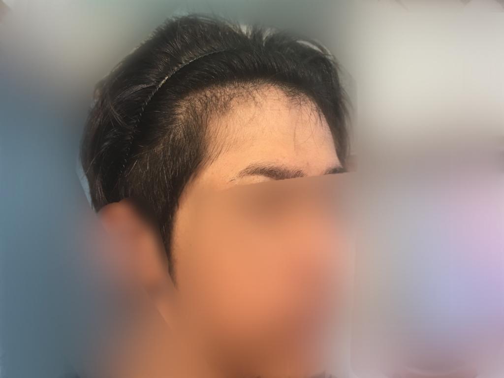 ルーチェクリニック植毛3ヶ月後の顔全体右向き