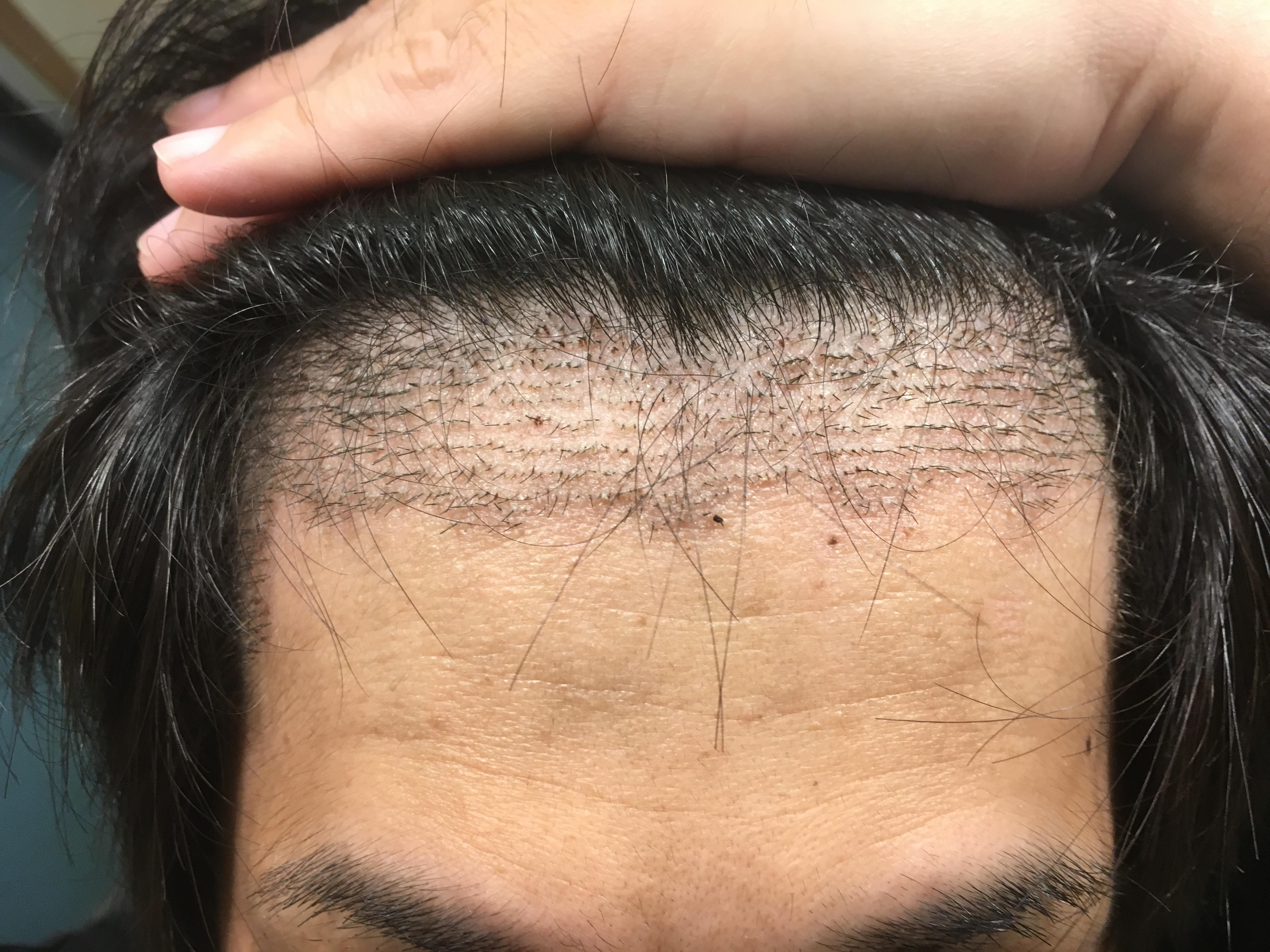 ルーチェクリニック植毛後10日目の前頭部(生え際)