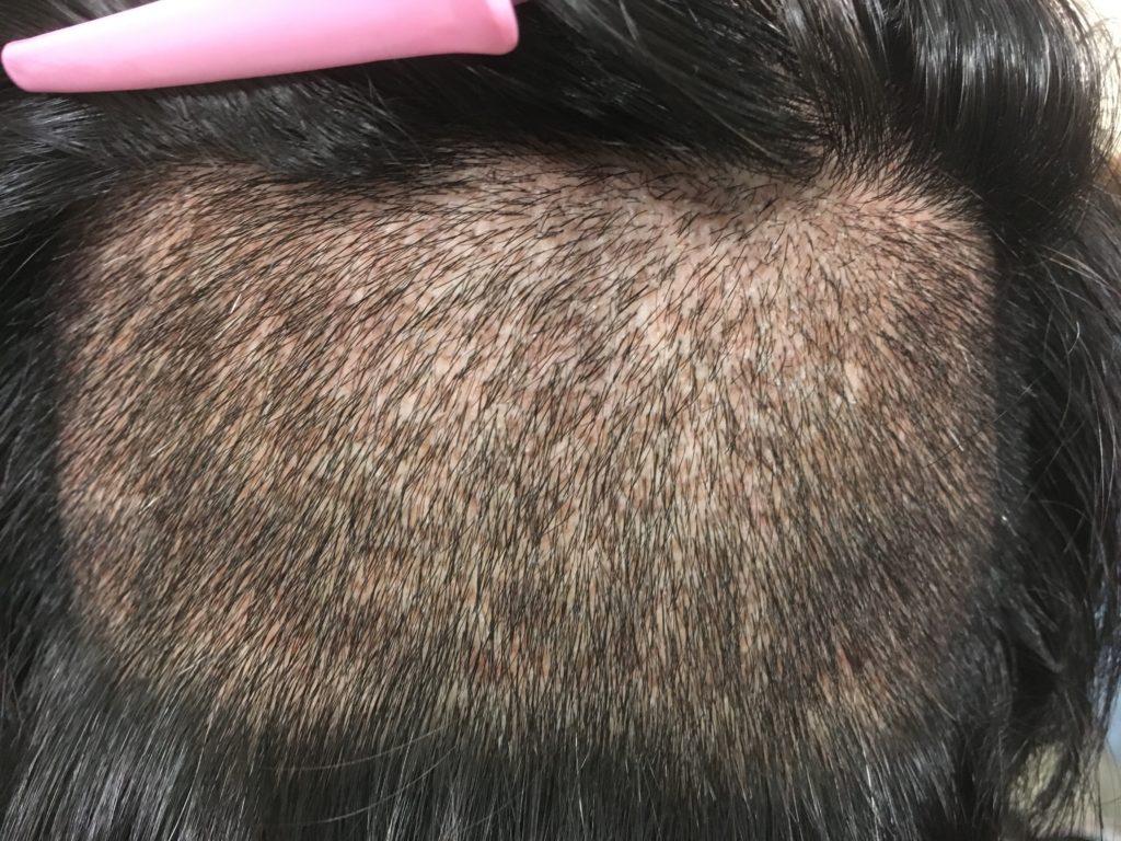 ルーチェクリニック植毛後10日目の刈り上げた後頭部拡大