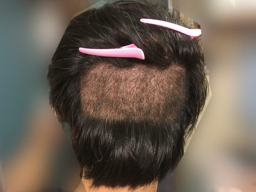 ルーチェクリニック植毛後10日目の刈り上げた後頭部