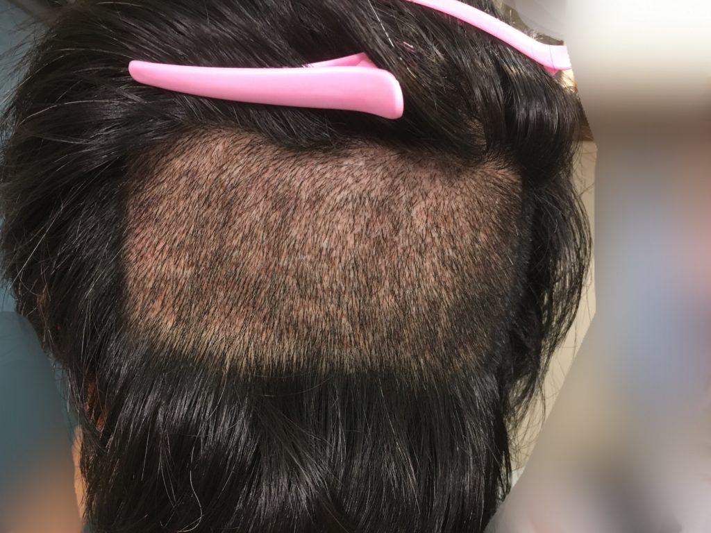 ルーチェクリニック植毛後10日目の刈り上げた後頭部2