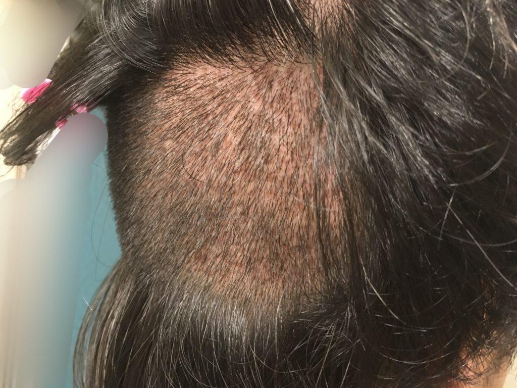 ルーチェクリニック植毛後10日目の刈り上げた後頭部斜め右から