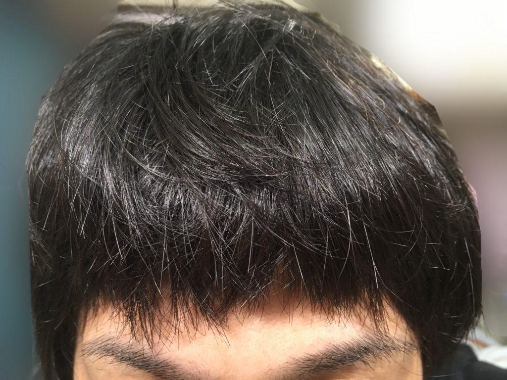 ルーチェクリニック植毛後10日目の前髪を下ろした時