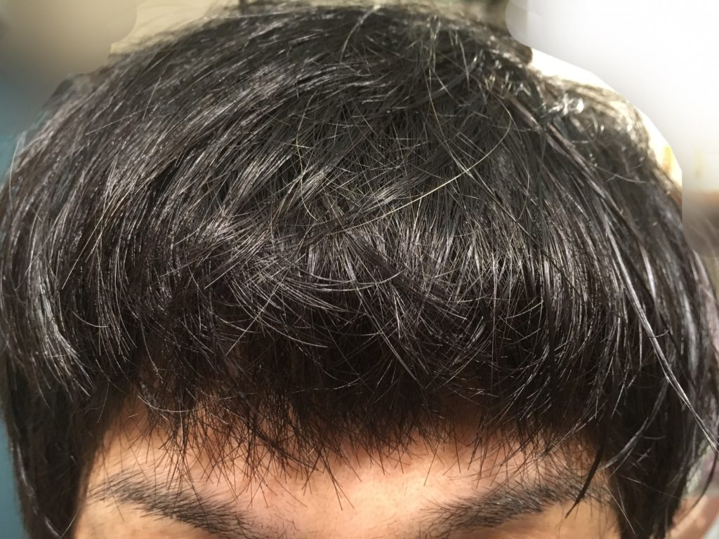 ルーチェクリニック植毛後20日目の前髪を下ろした時