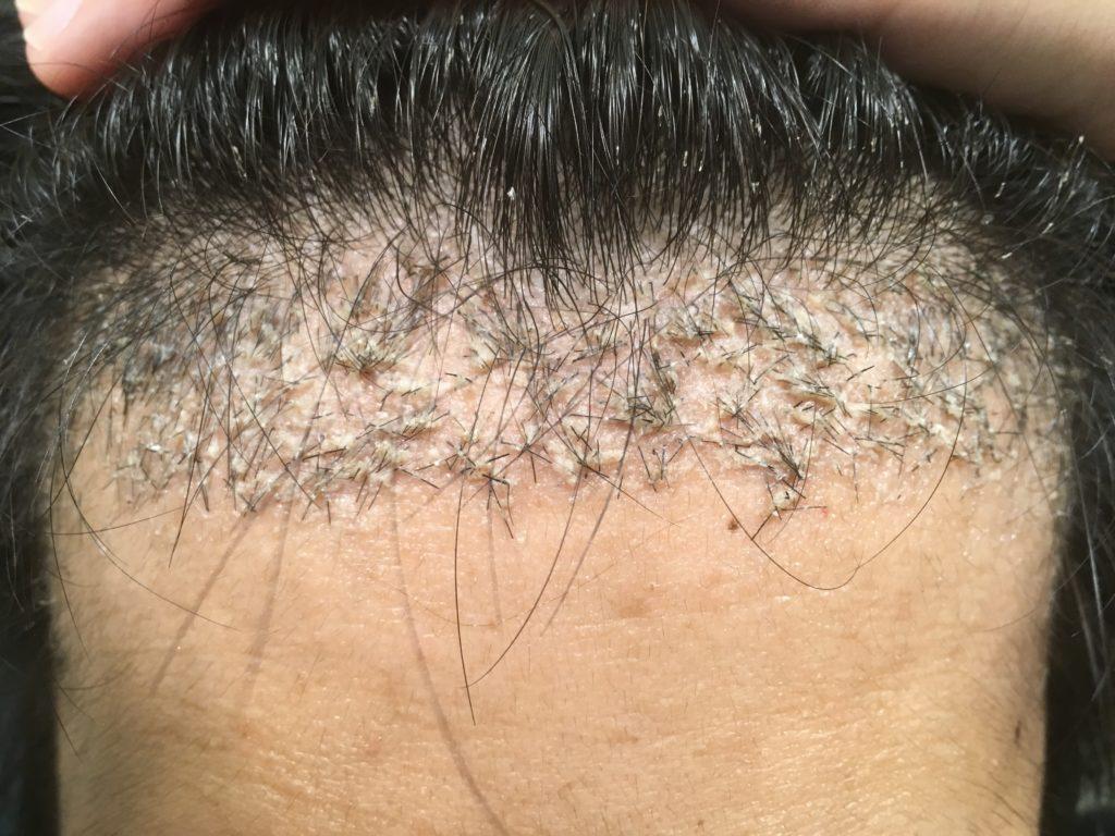 ルーチェクリニック植毛後1ヶ月後の前頭部(生え際)拡大