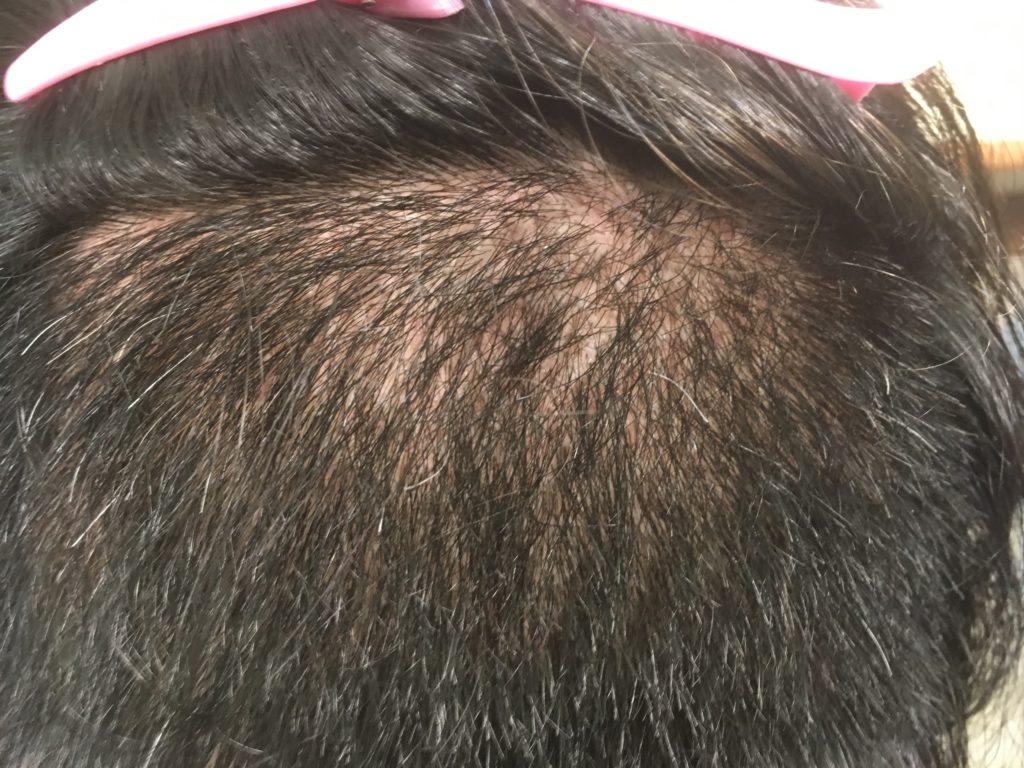 ルーチェクリニック植毛後1ヶ月後の刈り上げた後頭部3