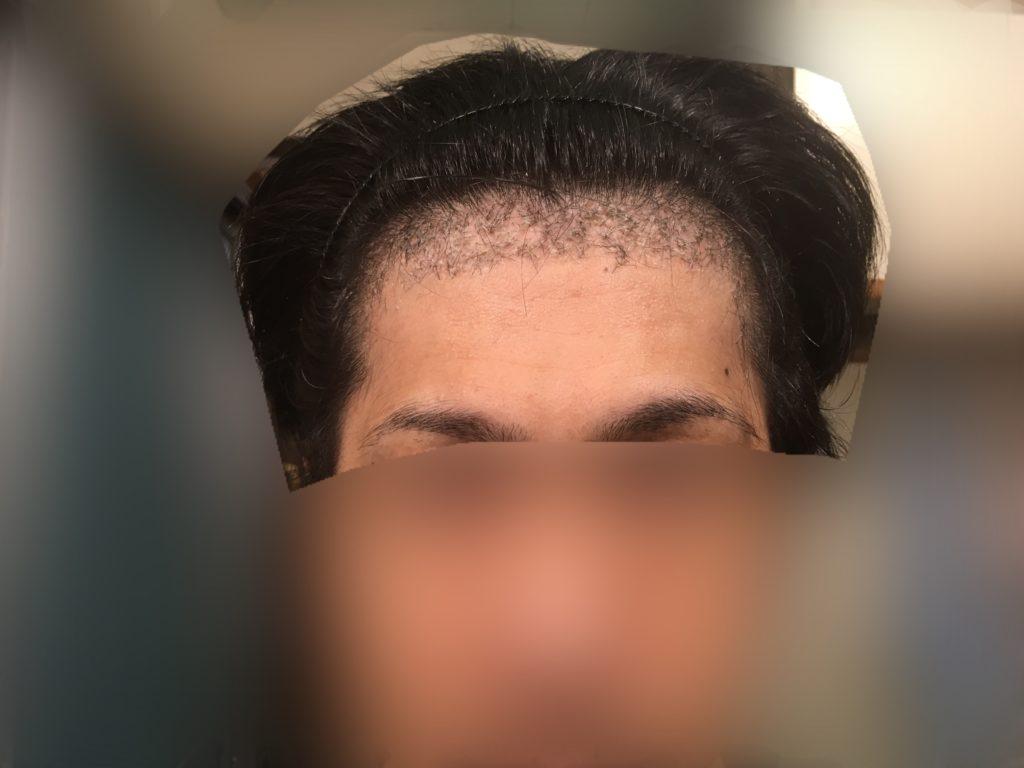 ルーチェクリニック植毛後1ヶ月後の前頭部(生え際)顔全体