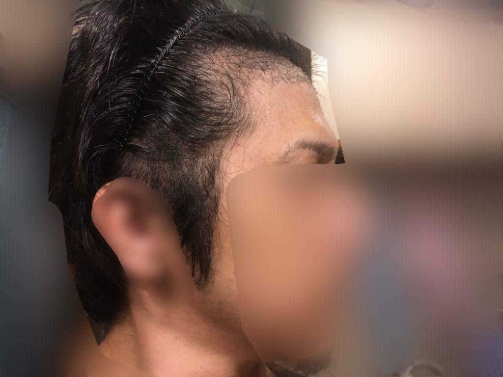 ルーチェクリニック植毛後1ヶ月後の右M字顔全体