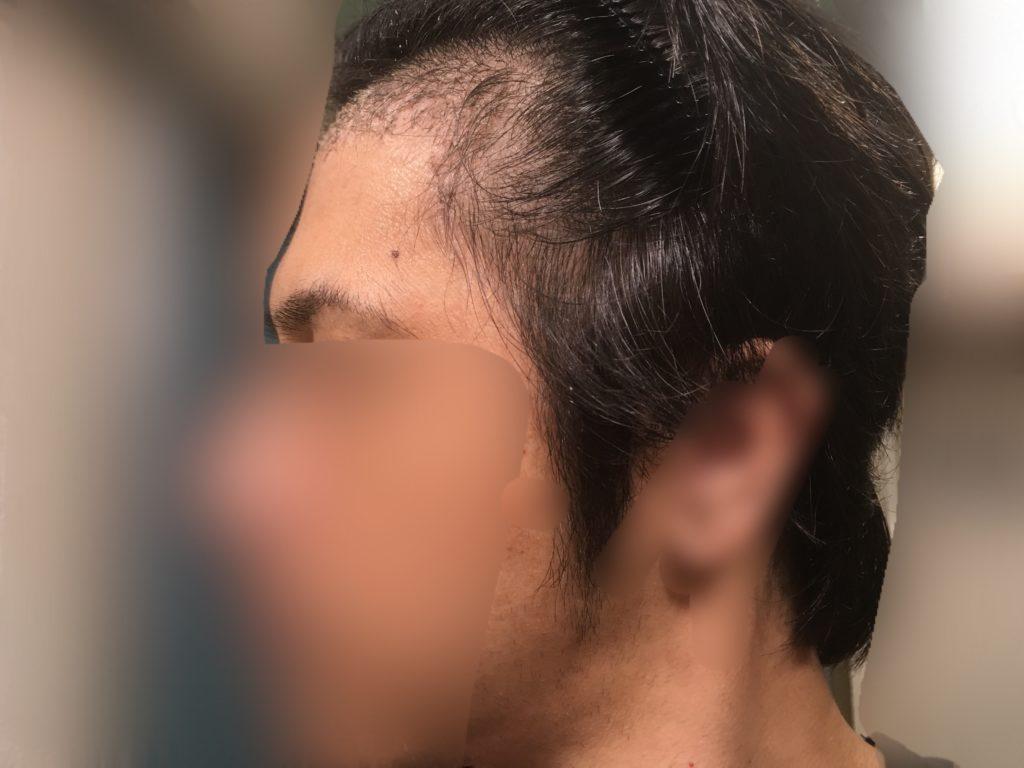 ルーチェクリニック植毛後1ヶ月後の左M字顔全体
