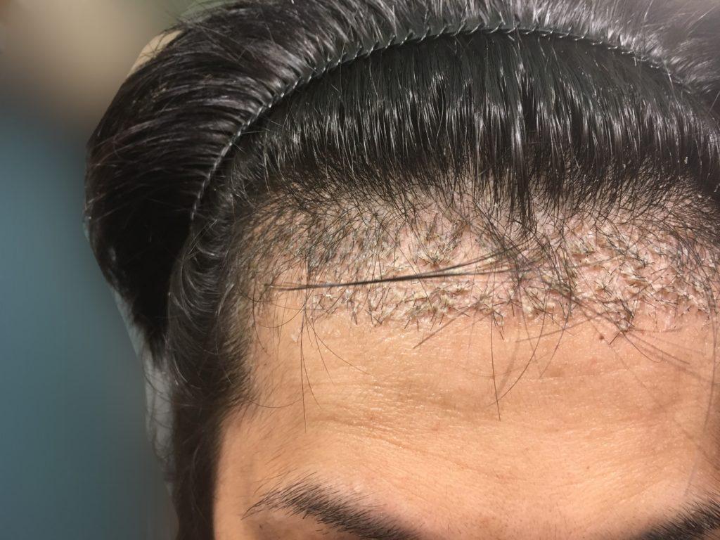 ルーチェクリニック植毛後1ヶ月後の右M字