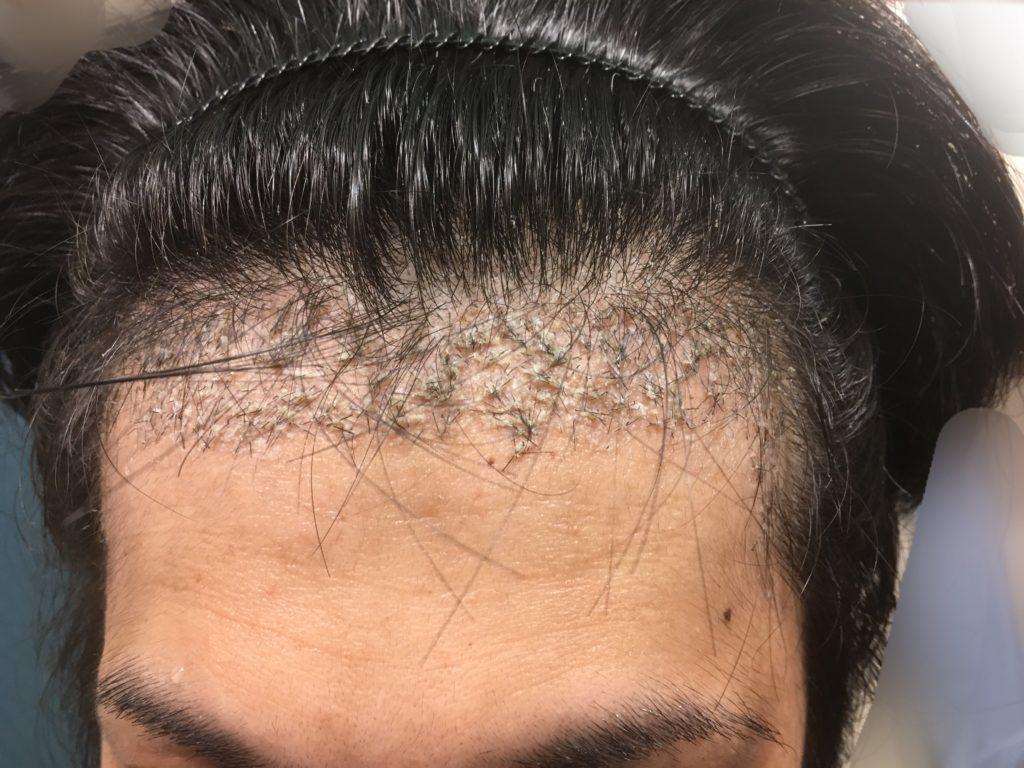 ルーチェクリニック植毛後1ヶ月後の左M字