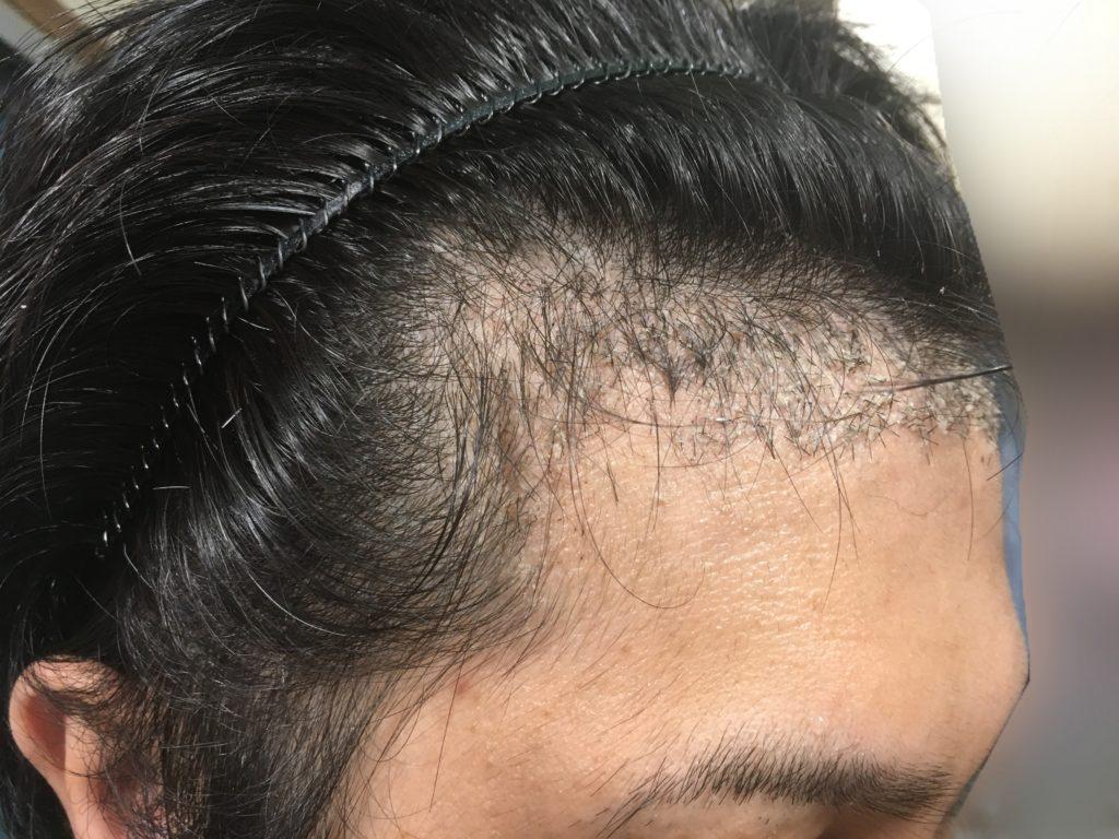 ルーチェクリニック植毛後1ヶ月後の右M字3