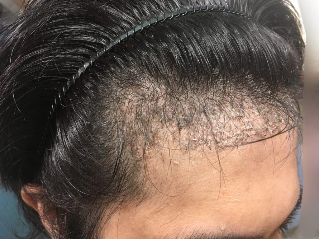 ルーチェクリニック植毛後1ヶ月後の右M字2