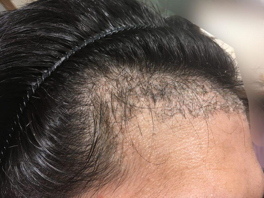 ルーチェクリニック植毛後1ヶ月後の右M字4