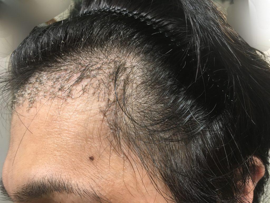 ルーチェクリニック植毛後1ヶ月後の左M字2