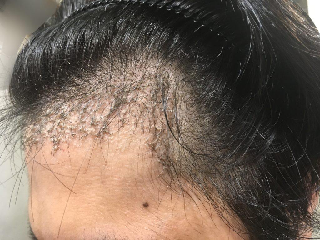 ルーチェクリニック植毛後1ヶ月後の左M字3