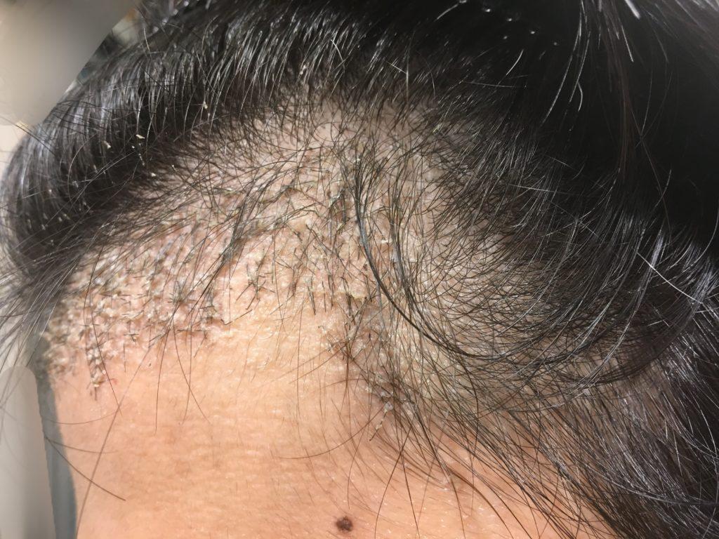 ルーチェクリニック植毛後1ヶ月後の左M字4