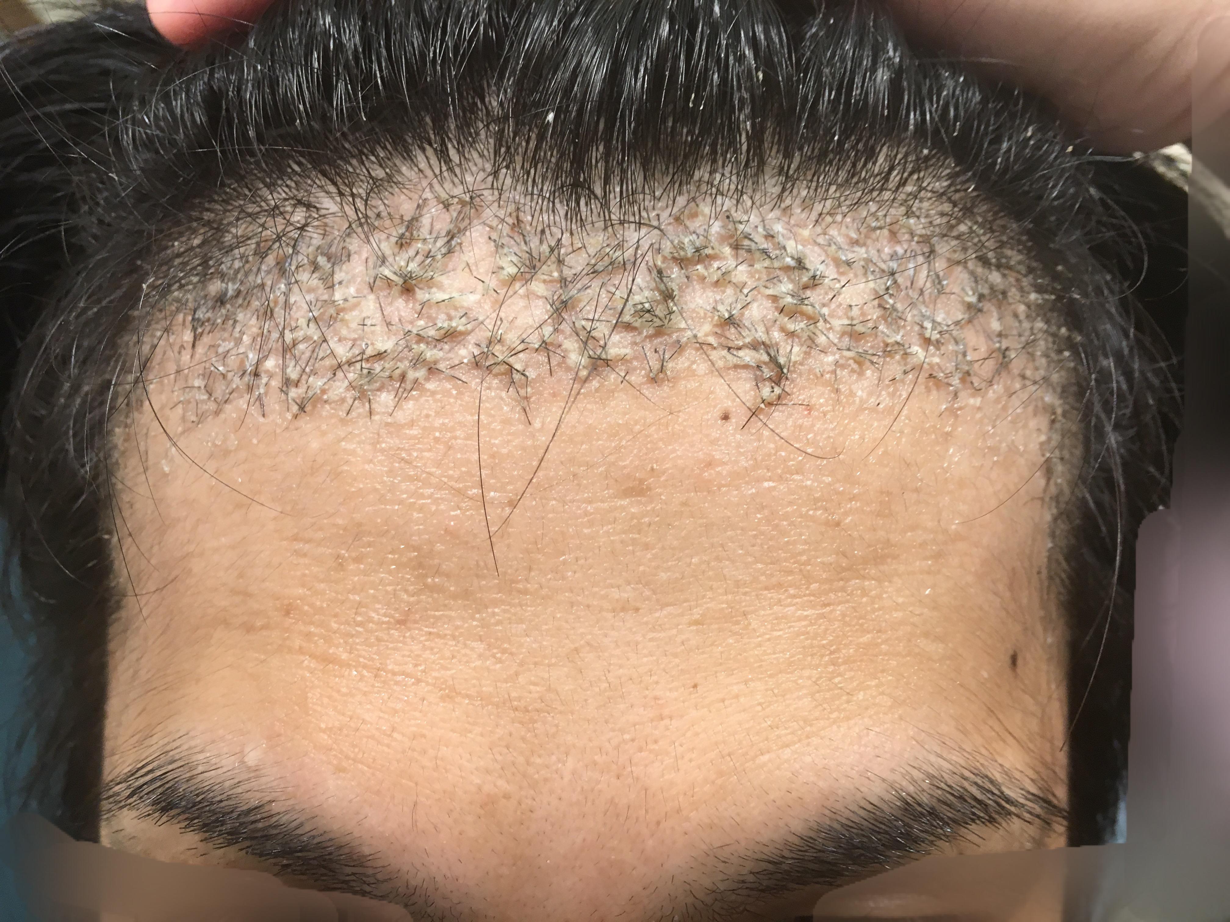 ルーチェクリニック植毛後1ヶ月後の前頭部(生え際)