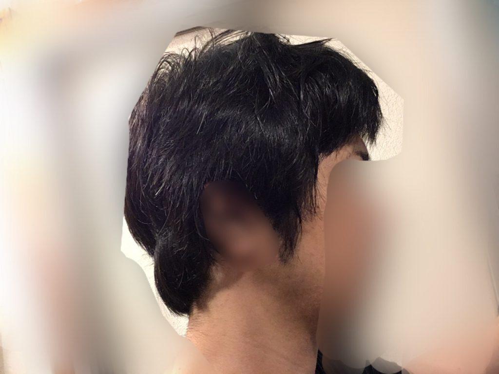 ルーチェクリニック植毛後1ヶ月後の刈り上げ部おろした右向き