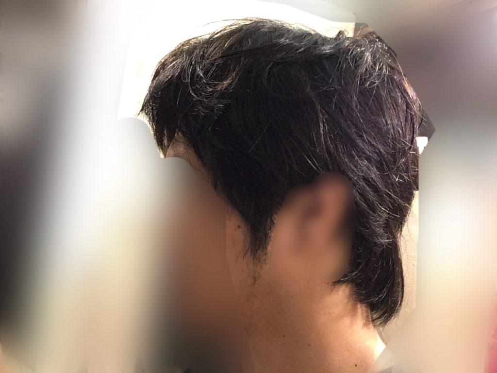 ルーチェクリニック植毛後1ヶ月後の刈り上げ部おろした左向き